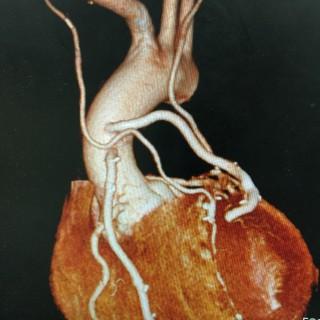 両側内胸動脈を用いた6枝Off pump MICS CABGの術後CT検査です
