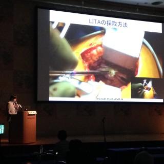 日本冠動脈外科で発表してきました