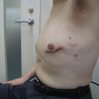 MICS CABG(低侵襲冠動脈バイパス術)