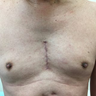 MICS(低侵襲心臓手術)で行うMAZE(不整脈)手術