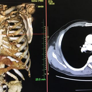 画像診断の進歩