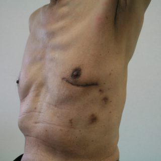 MICS (低侵襲心臓手術)の術前評価